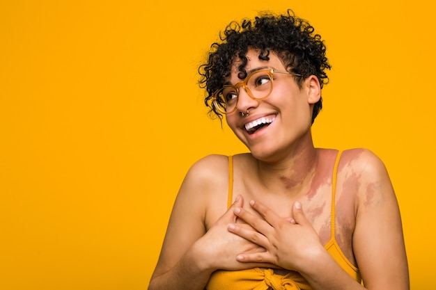 Young african american woman with skin birth mark laughing keeping hands on heart, concept of happiness.