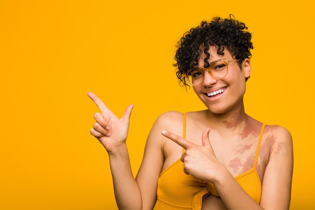Young african american woman with skin birth mark pointing with forefingers to a  expressing excitement and desire.