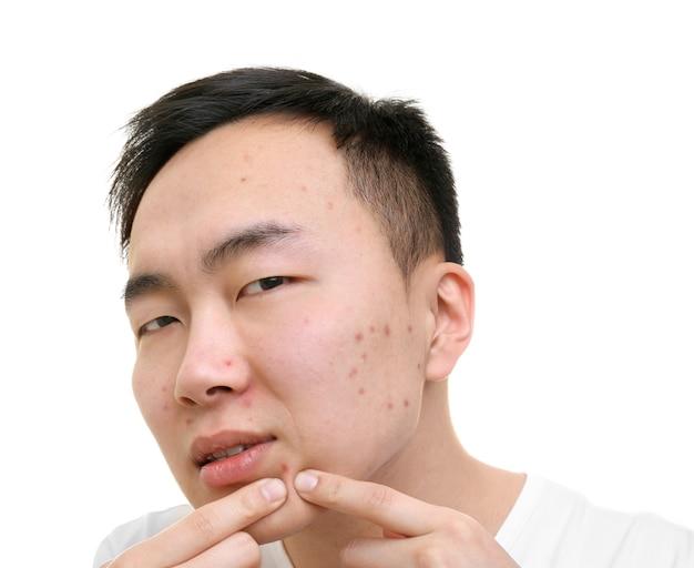 白い背景に、にきびをポップアジアの若い男