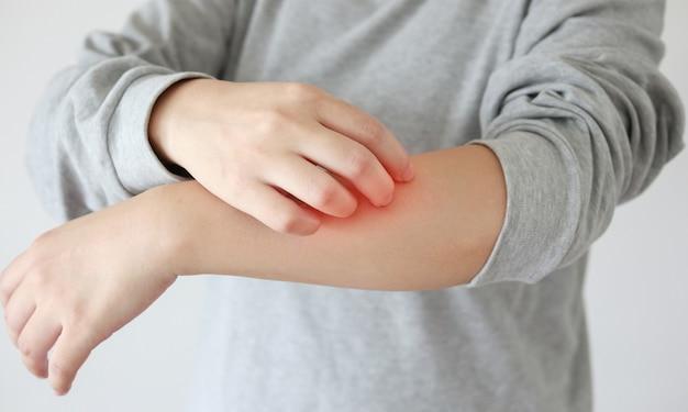 Молодая азиатская женщина чешется и царапает руку от зудящей сухой кожи, экземы, дерматита