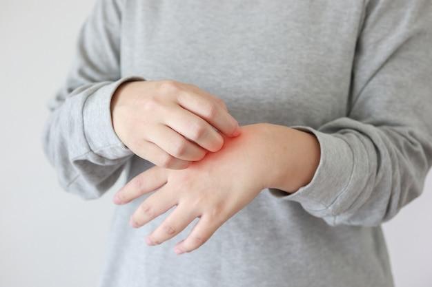 Молодая азиатская женщина чешется и чешется на руке от зудящей сухой кожи, экземы, дерматита