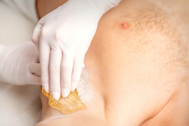 Молодой кавказский мужчина получает удаление волос из подмышки в салоне красоты, депиляция мужской подмышки.