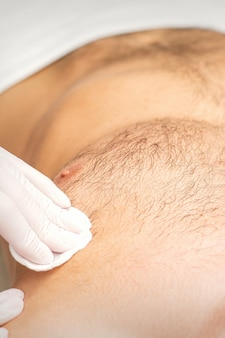 미용실에서 가슴에서 제모를 받고 있는 백인 청년, 탈모 남성의 몸통.