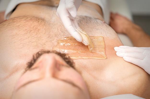 Молодой кавказский мужчина получает удаление волос с груди в салоне красоты, депиляция мужского торса