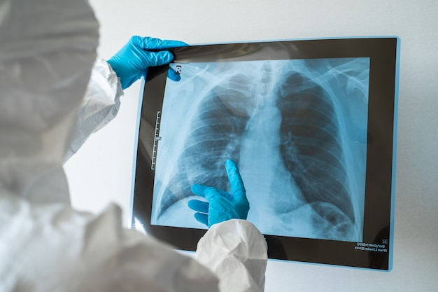 Молодой женский доктор смотря изображение рентгеновского снимка легких в больнице. симптомы коронавируса - пневмония, разрушение легких, высокая температура