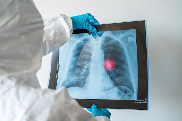 병원에서 폐의 x 선 사진을보고 젊은 여성 의사. 코로나 바이러스의 증상-폐렴, 폐 파괴, 고열