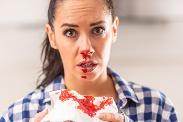 鼻血のある若い女性は、組織、鼻、口のいたるところに血が混じっています。