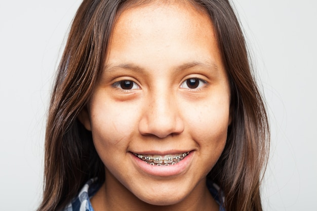 Молодая девушка улыбается с техникой на зубах