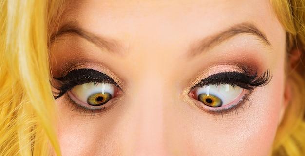 사시와 어린 소녀입니다. 시력 교정을 위한 레이저 수술. 근접 촬영 눈을 가늘게 뜨다. 눈병 또는 장애.