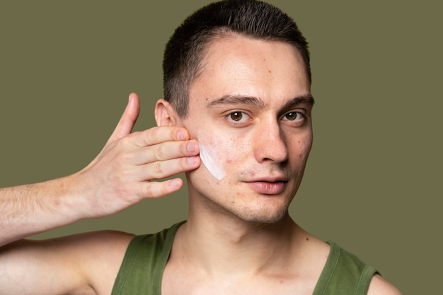 Young handsome man using a cream for acne