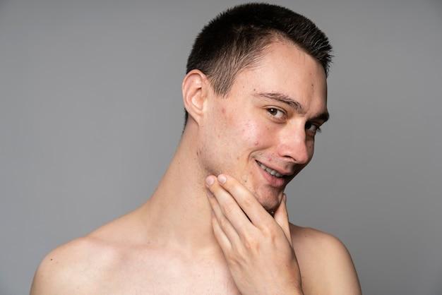 にきびを持つ若いハンサムな男