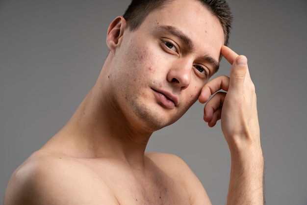 Giovane uomo bello con l'acne