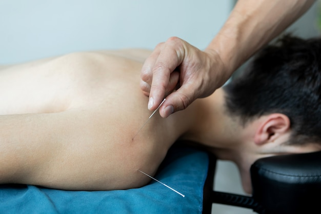 Young man in an acupuncture therapy