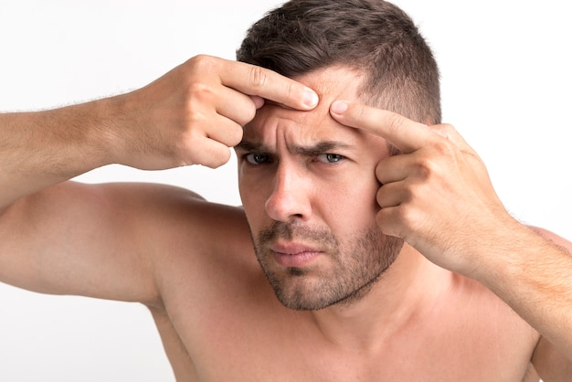 Young man is squeezing pimples on his forehead
