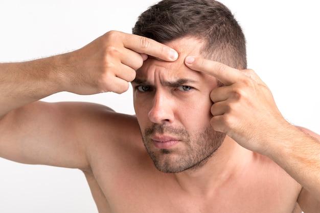 若い男は彼の額ににきびを絞る