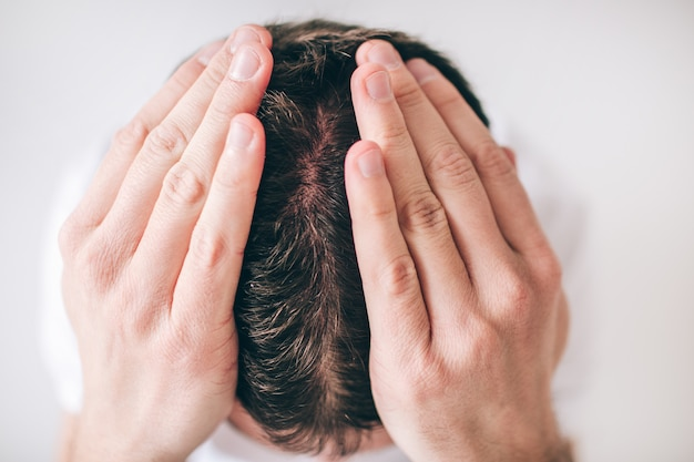 Young man isolated over white wall. close up picture of head. hair problem falling down. hold hands on head. dandruff on head skin.