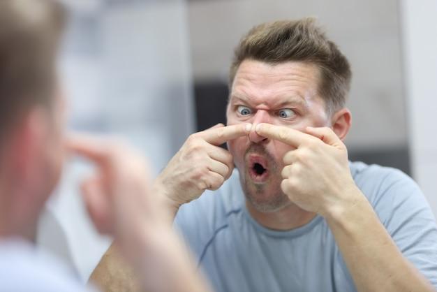若い男は鏡を見て、鼻ににきびを押します