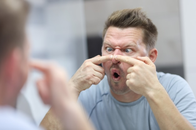 Young man looks in mirror and presses pimples on his nose