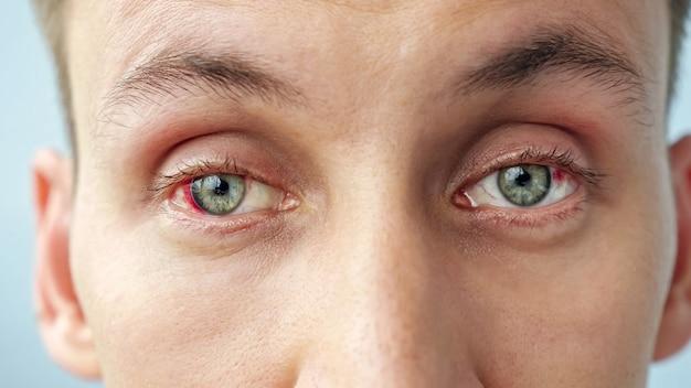 카메라를 보고 빨간 눈을 가진 젊은 남자