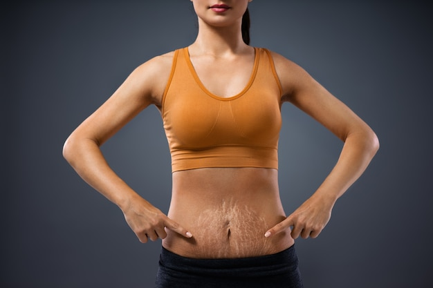 Young mum standing and pointing at her belly full of stretch marks after pregnancy.