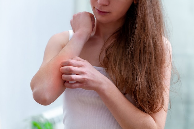 Young person suffering from itching on her skin and scratching an itchy place.
