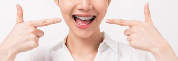 Молодая усмехаясь женщина с расчалками на ее зубах