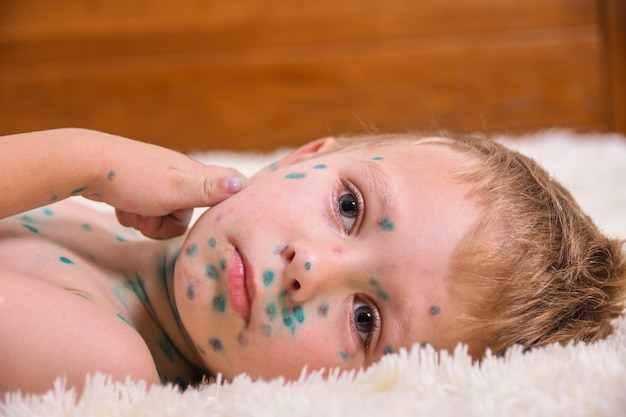 Молодой малыш, мальчик с ветряной оспой. больной ребенок с ветряной оспой. вирус ветряной оспы или ветряная оспа на коже и лице ребенка.