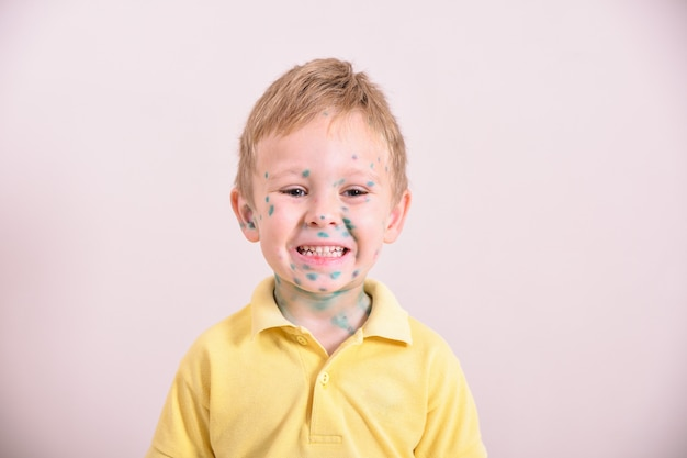 Young toddler with chickenpox. sick child with chickenpox. varicella virus or chickenpox bubble rash on child body and face.  portrait of little boy with pox.