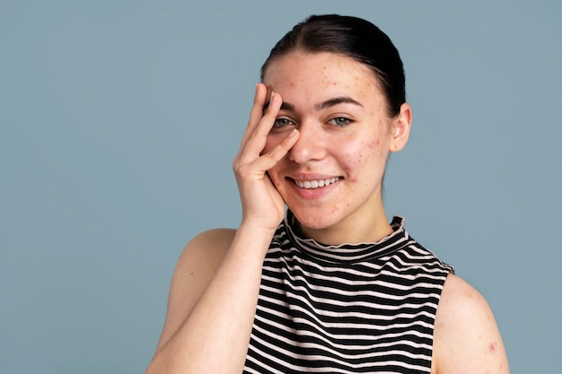 Young woman being confident with her acne