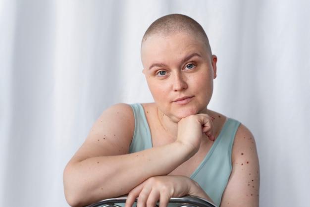 がんと闘う若い女性