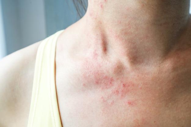 젊은 여자는 목에 피부 발진 가려움증이