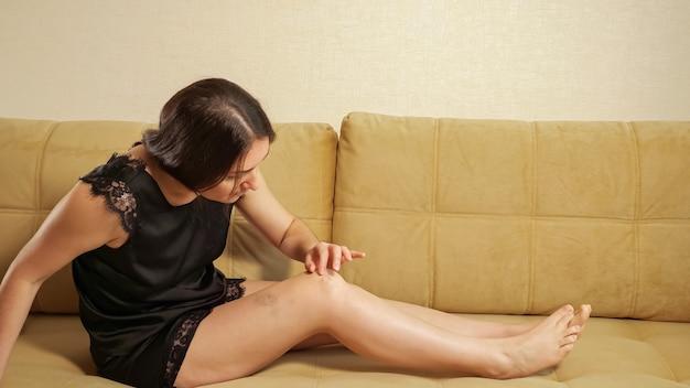 검은 양복을 입은 젊은 여성이 소파에 앉아 다리의 멍을 검사합니다.