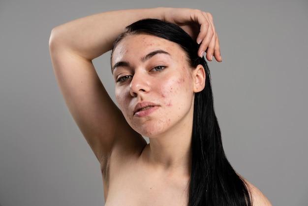 Giovane donna che mostra la sua acne con fiducia