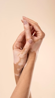Young woman showing her vitiligo skin parts