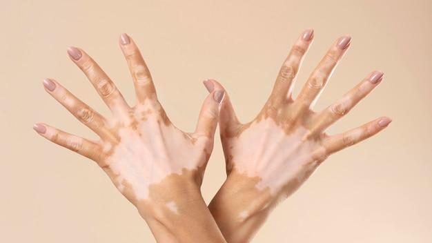 Giovane donna che mostra le parti della pelle con vitiligine