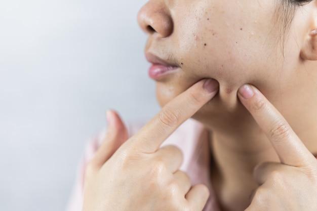 灰色の背景ににきびの問題を持つ若い女性