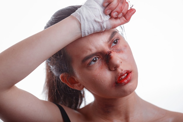 화이트 가정 폭력의 얼굴 피해자에 타박상을 가진 젊은 여자