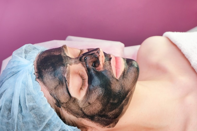 Young woman with carbon nanogel on her face in salon. peeling procedure.