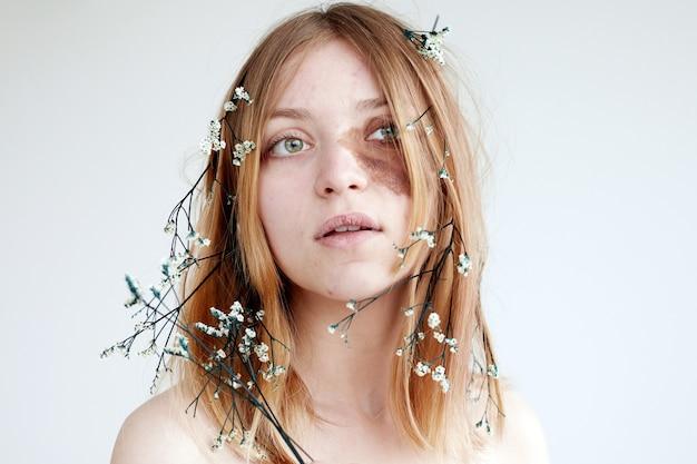 Молодая женщина с темным пятном на лице и цветами