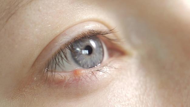 눈에 hordeolum 질병을 가진 젊은 여자. 확대