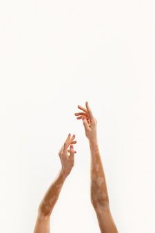 Young woman with vitiligo hands