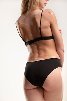 Young woman with vitiligo wearing underwear