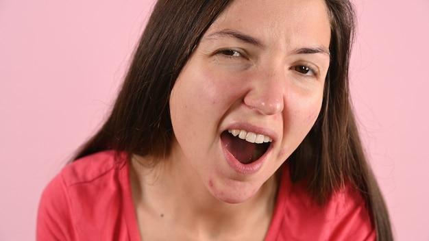 Молодая женщина беспокоится о прыщах и раздражении на коже