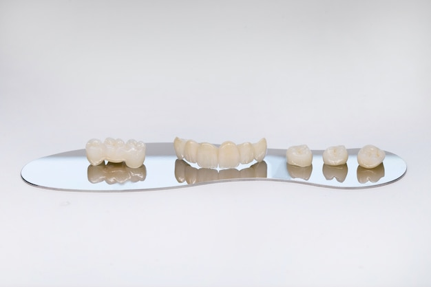 Циркониевая коронка зуба. изолировать на заднем плане. эстетическое восстановление утраченного зуба. керамический цирконий в окончательном варианте. безметалловые керамические зубные коронки.