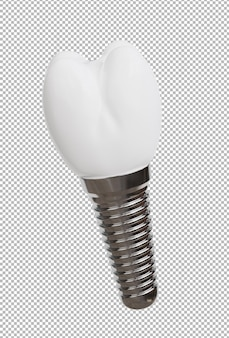 3d render of dental implant collection on transparent background,with clipping path