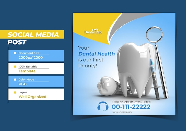 Концепция хирургии зубных имплантатов instagram post banner template.