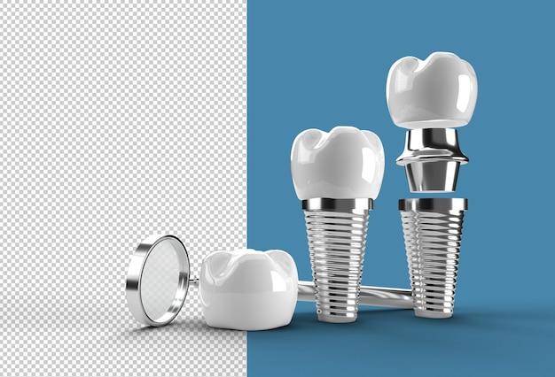Dental implants surgery concept transparent psd file.