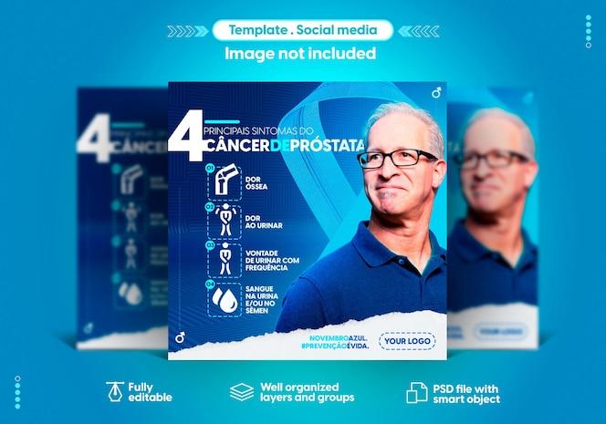 전립선 암 예방의 포르투갈어 11 월 블루 월 소셜 미디어 템플릿