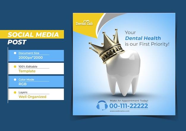 ゴールデンクラウン歯科インプラント手術コンセプトinstagraの歯