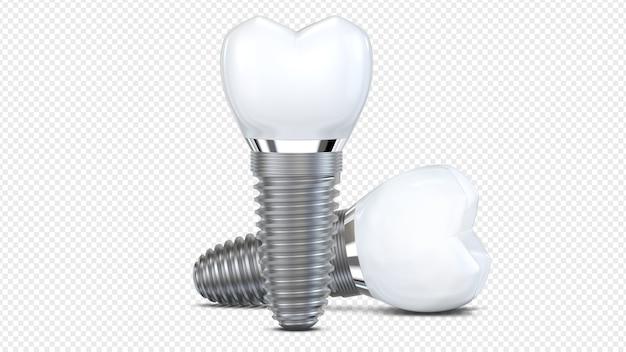 두 개의 치아 임플란트